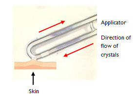 Microdermabrasion for Advanced Skin Therapy