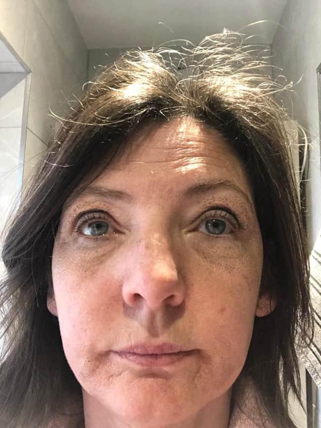 Day 5 after Plasma Pen Treatment