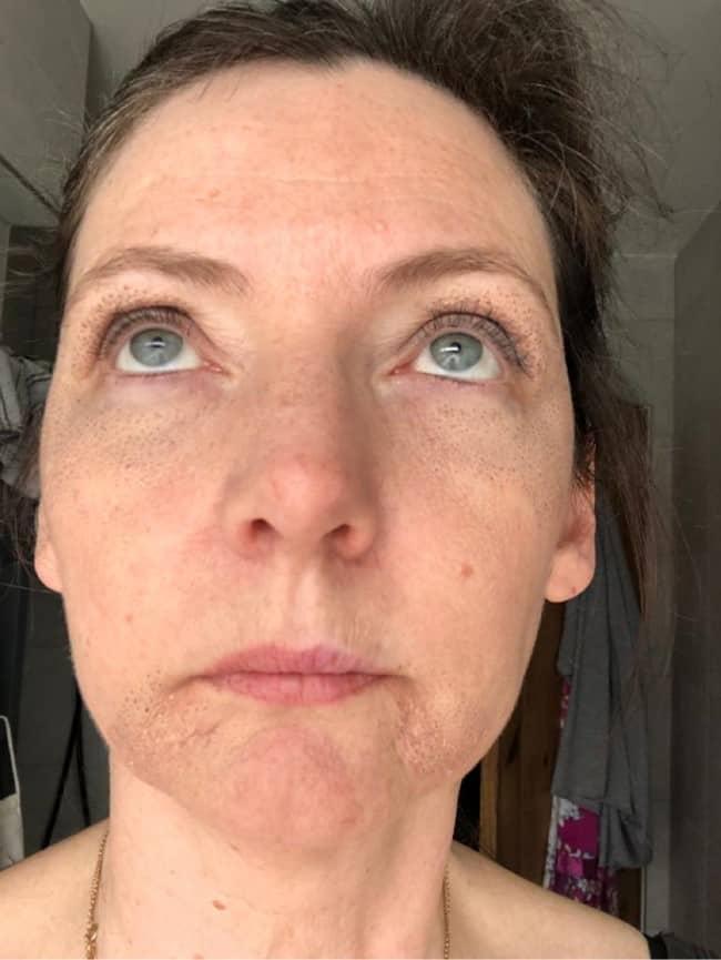 Day 6 after Plasma Pen Treatment