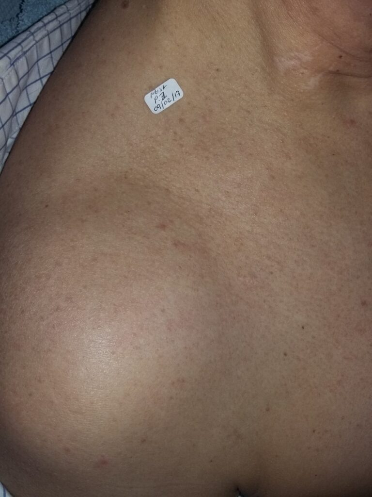 AFTER: Benign mole after advanced electrolysis