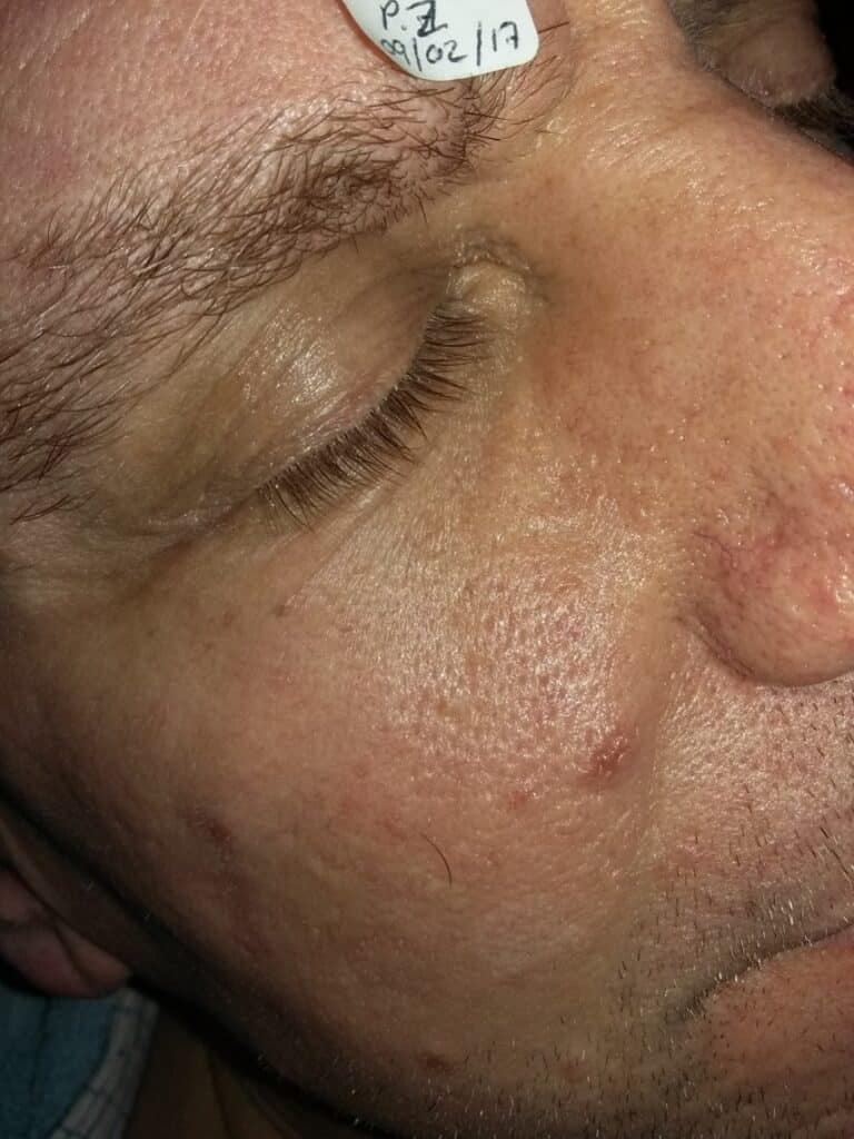 AFTER: Various Skin Anomalies - fat deposits, skin tags and benign nevus (mole)