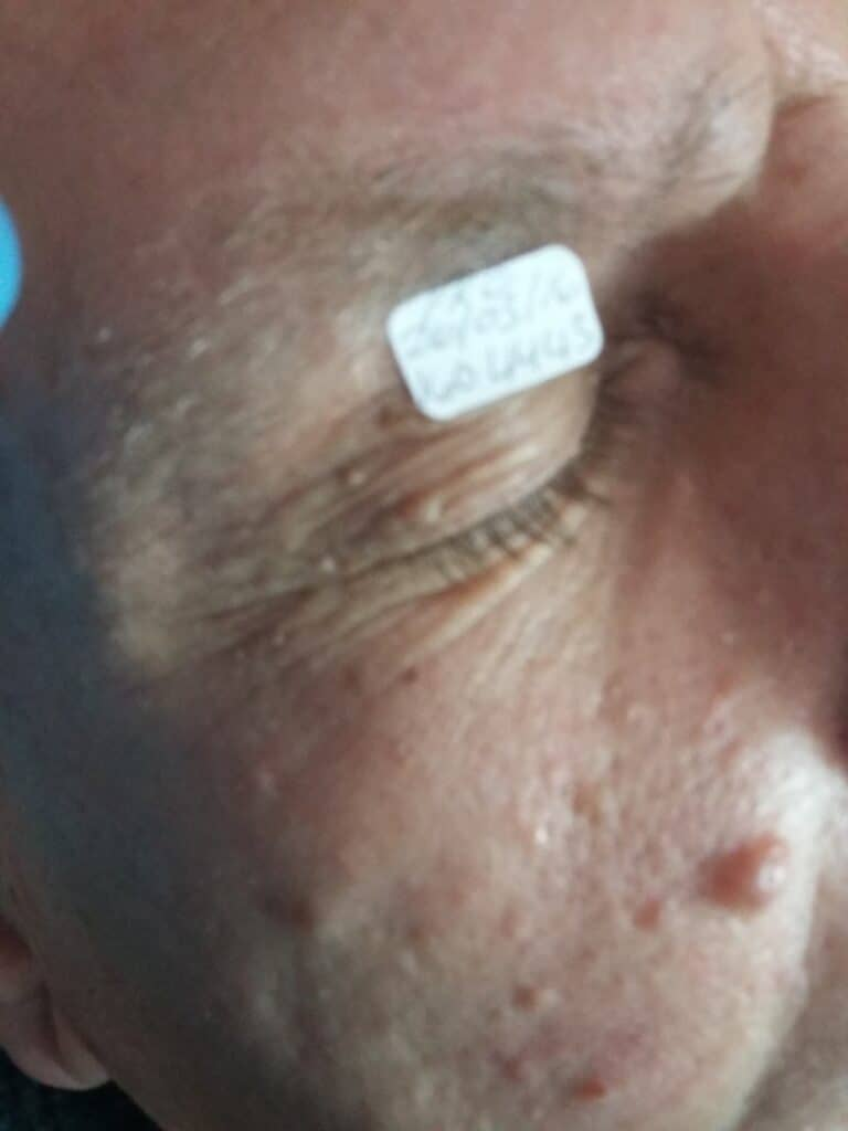BEFORE: Various Skin Anomalies - fat deposits, skin tags and benign nevus (mole)